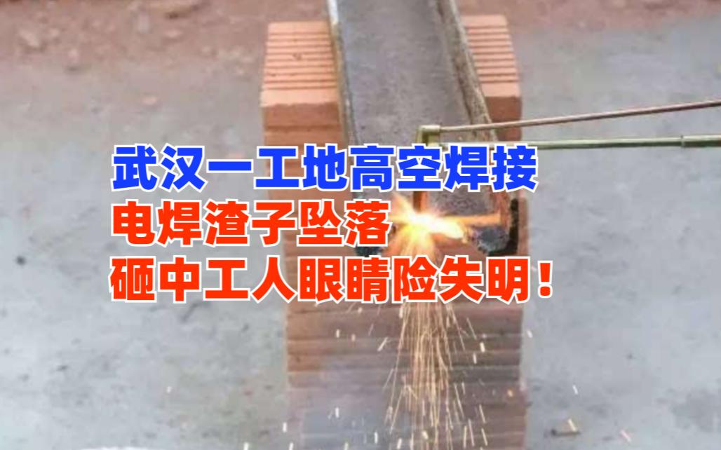 危!武汉一工地内电焊渣子从高空坠落砸中工人左眼险致失明!