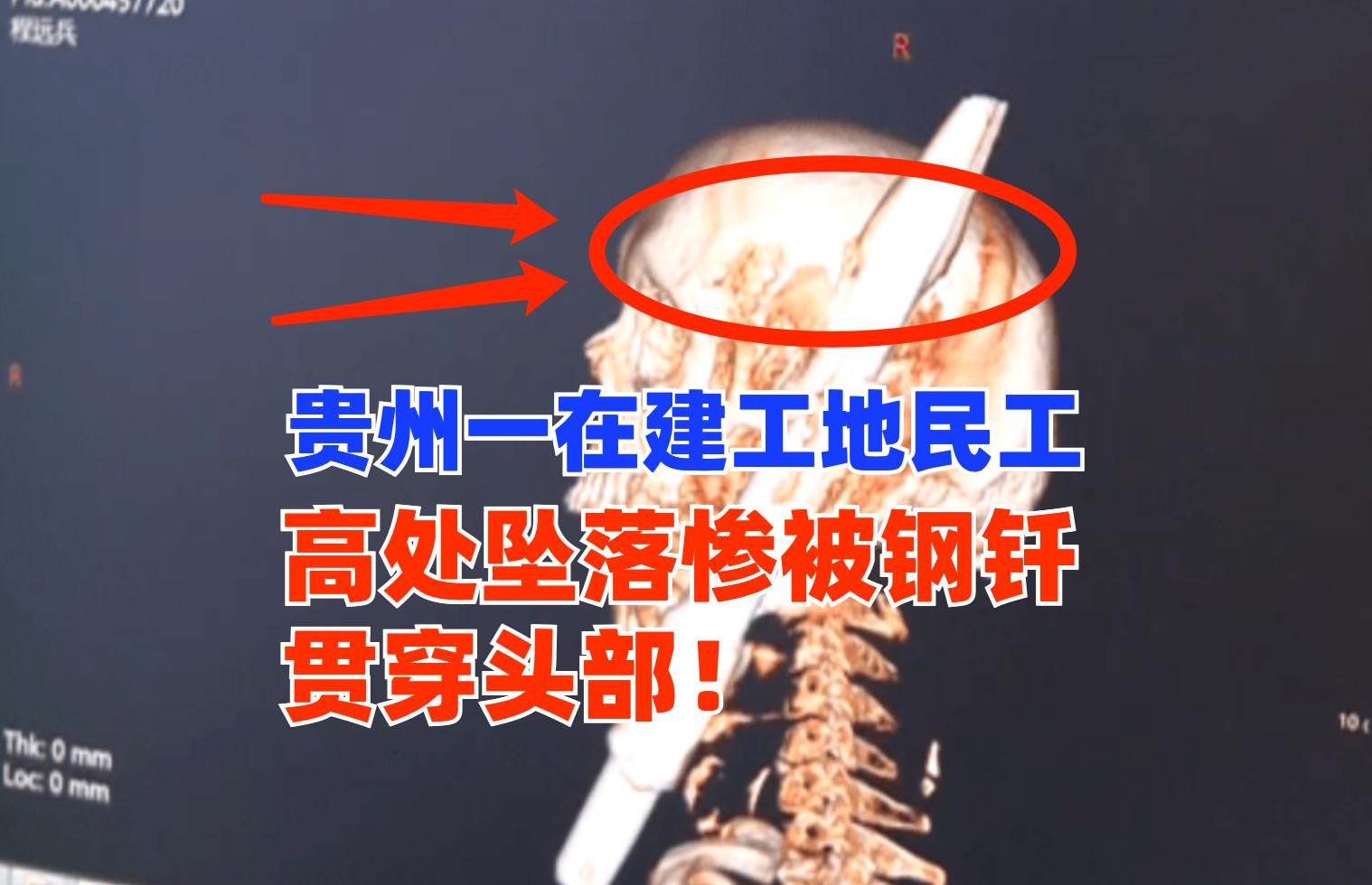 突发!7月中旬贵州一工地民工从高处意外坠落惨被钢钎贯穿头部!